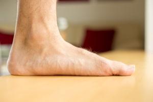 flat feet christopher miller orthopedic