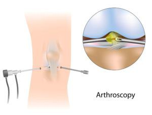 arthroscopy christopher miller orthopedic
